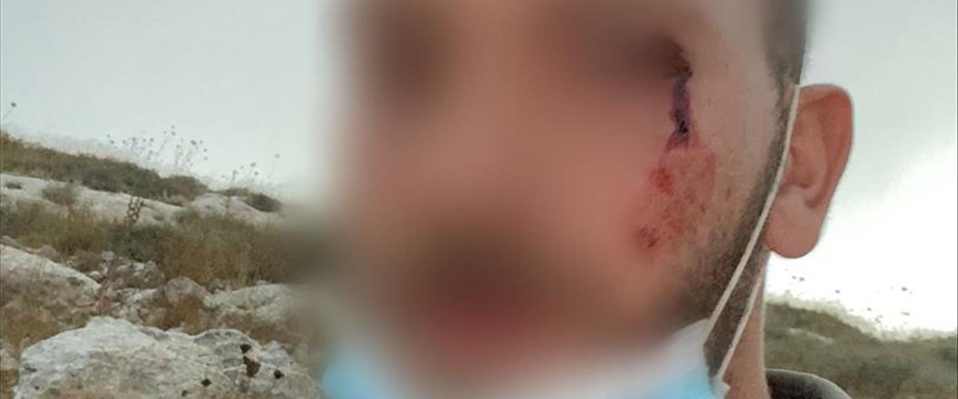 """חייל מג""""ב שנפצע במהלך פינוי מאחז """"קומי אורי"""""""