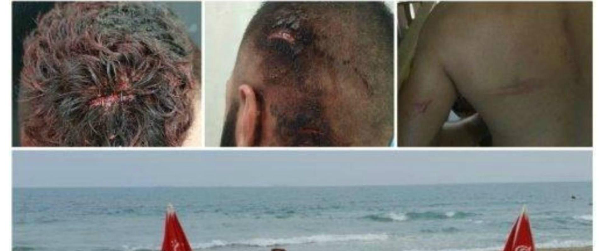 שלושת תושבי שפרעם שהותקפו ונפצעו